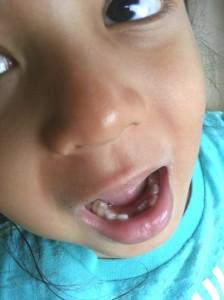 Giginya sudah keluar...