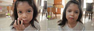 bibir anak bengkak karena jatuh